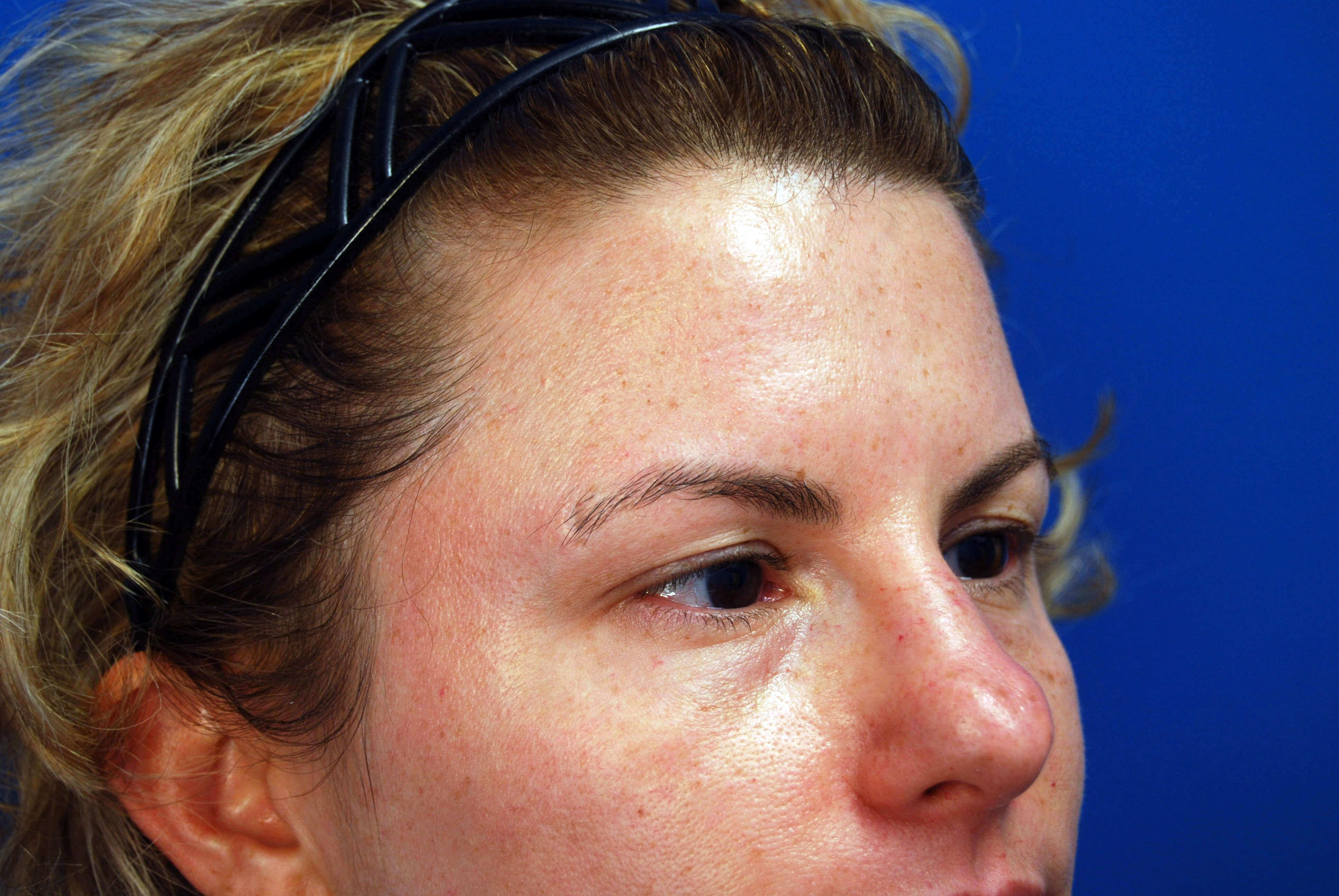 Right Side View Before Upper Eyelid Lift