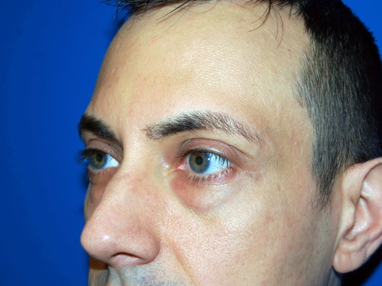 Lower Eyelid - Left Before