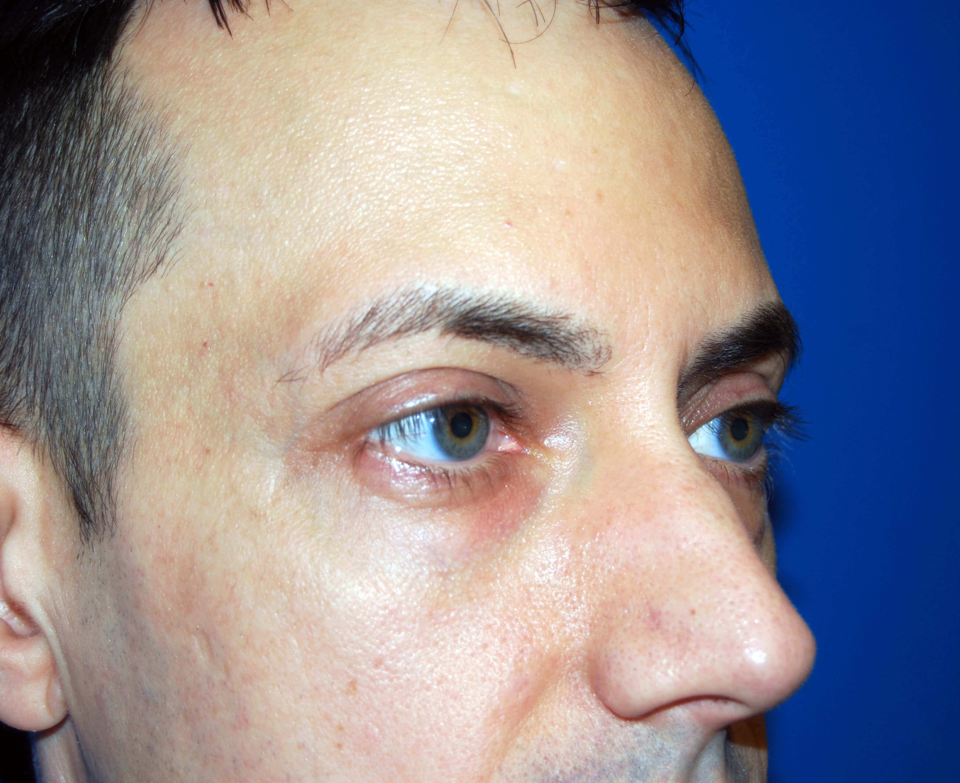 Lower Eyelid - Right Before