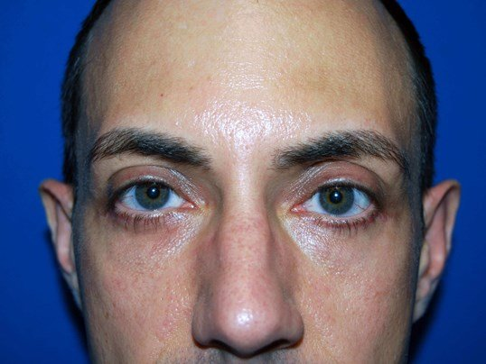 Lower Eyelid - Front After