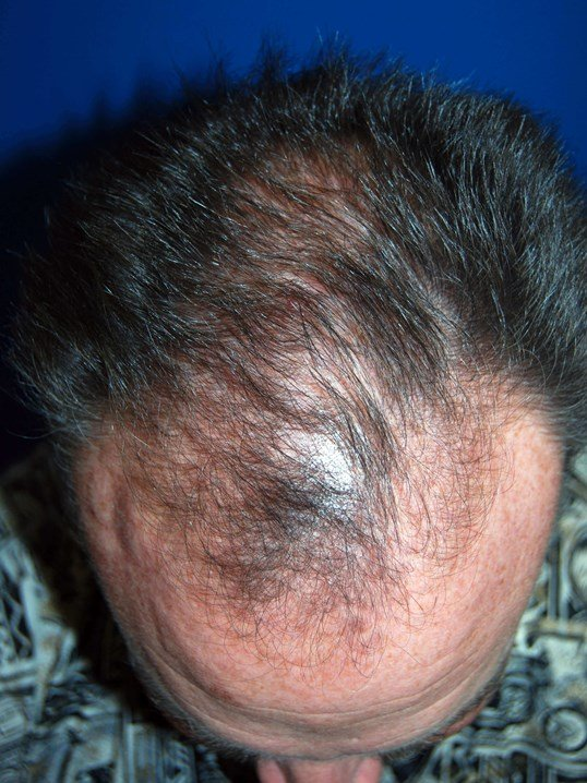 Hair Restoration Tampa Bay Before Hair Transplant