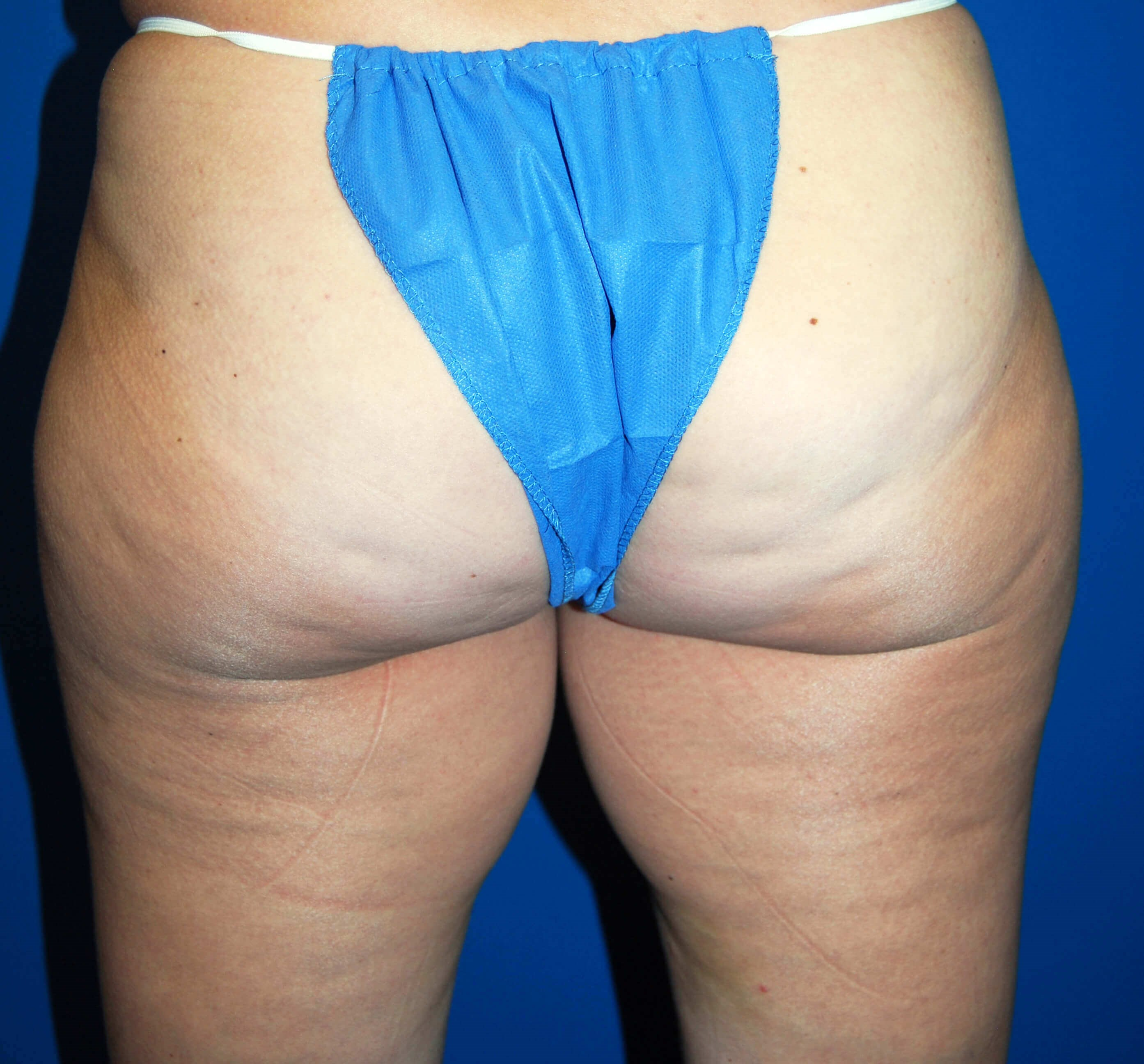 Back Side After CoolSculpting