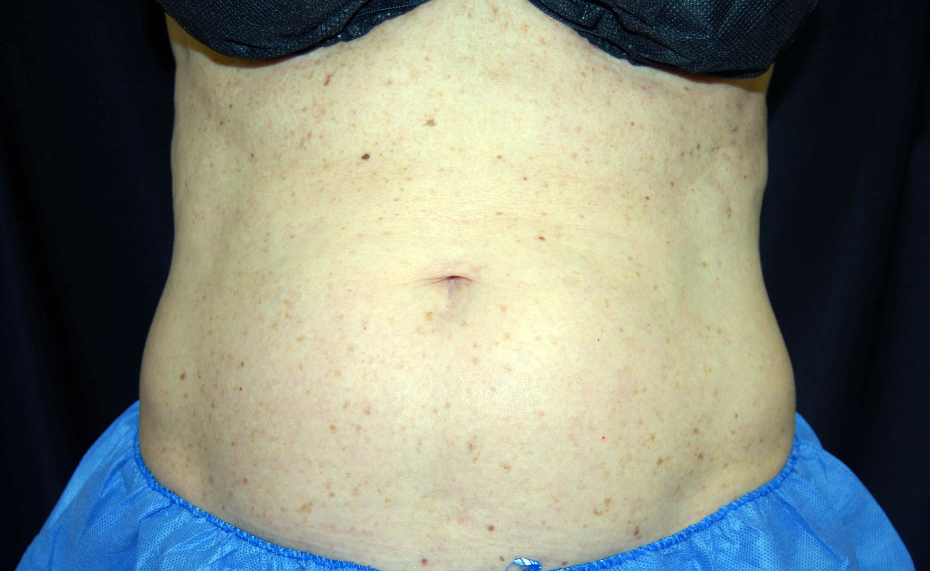 Front View Before CoolSculpting