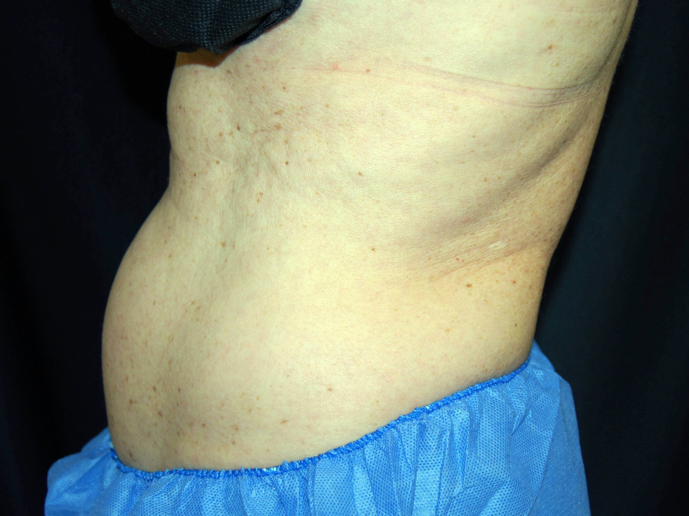 Left Side View Before CoolSculpting