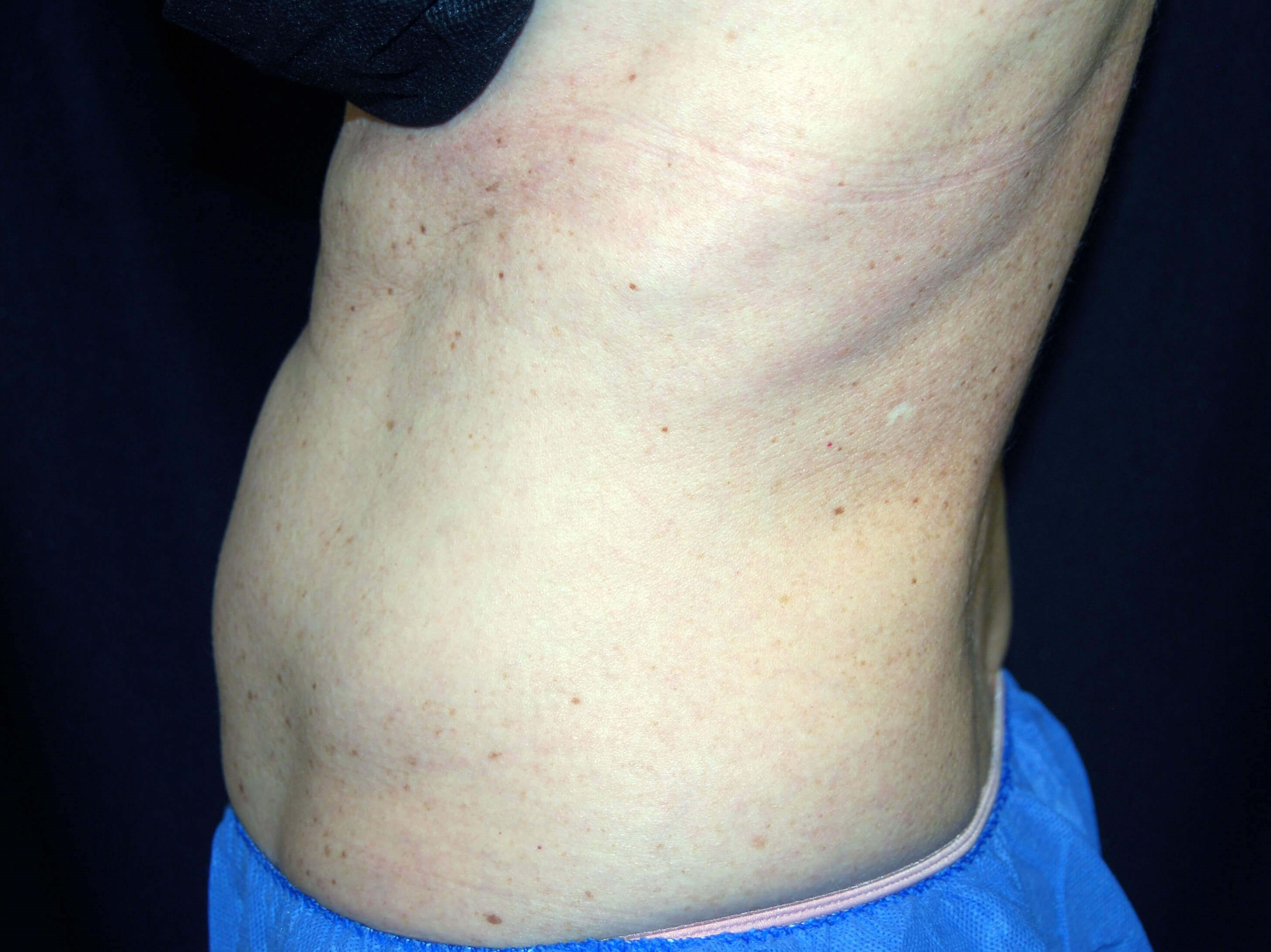 Left Side View After CoolSculpting