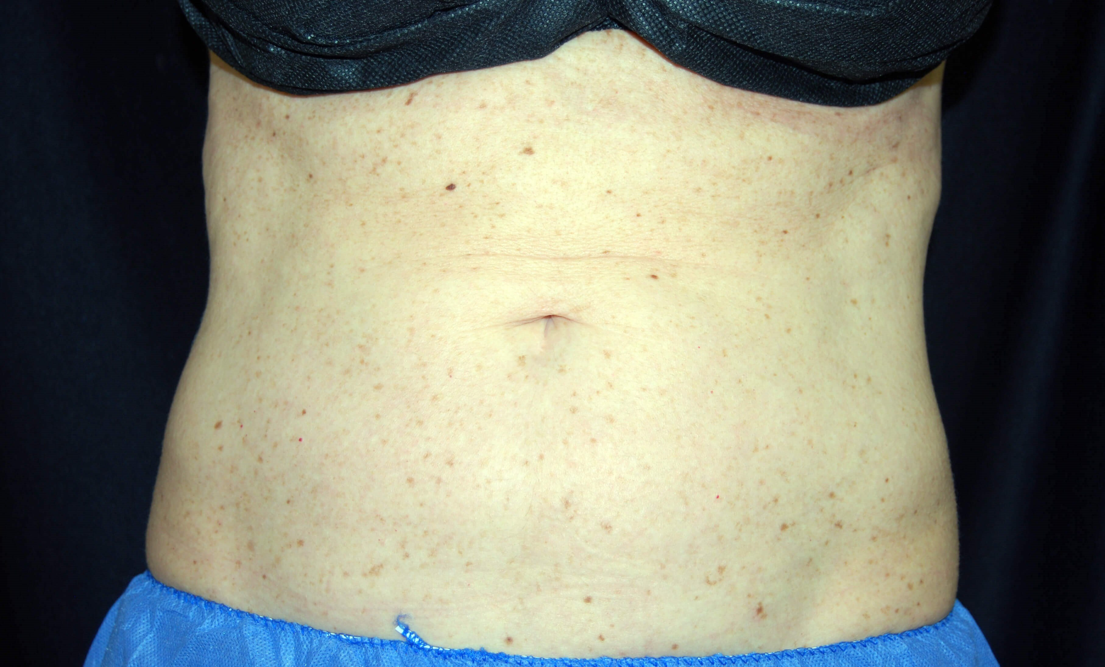 Front View After CoolSculpting