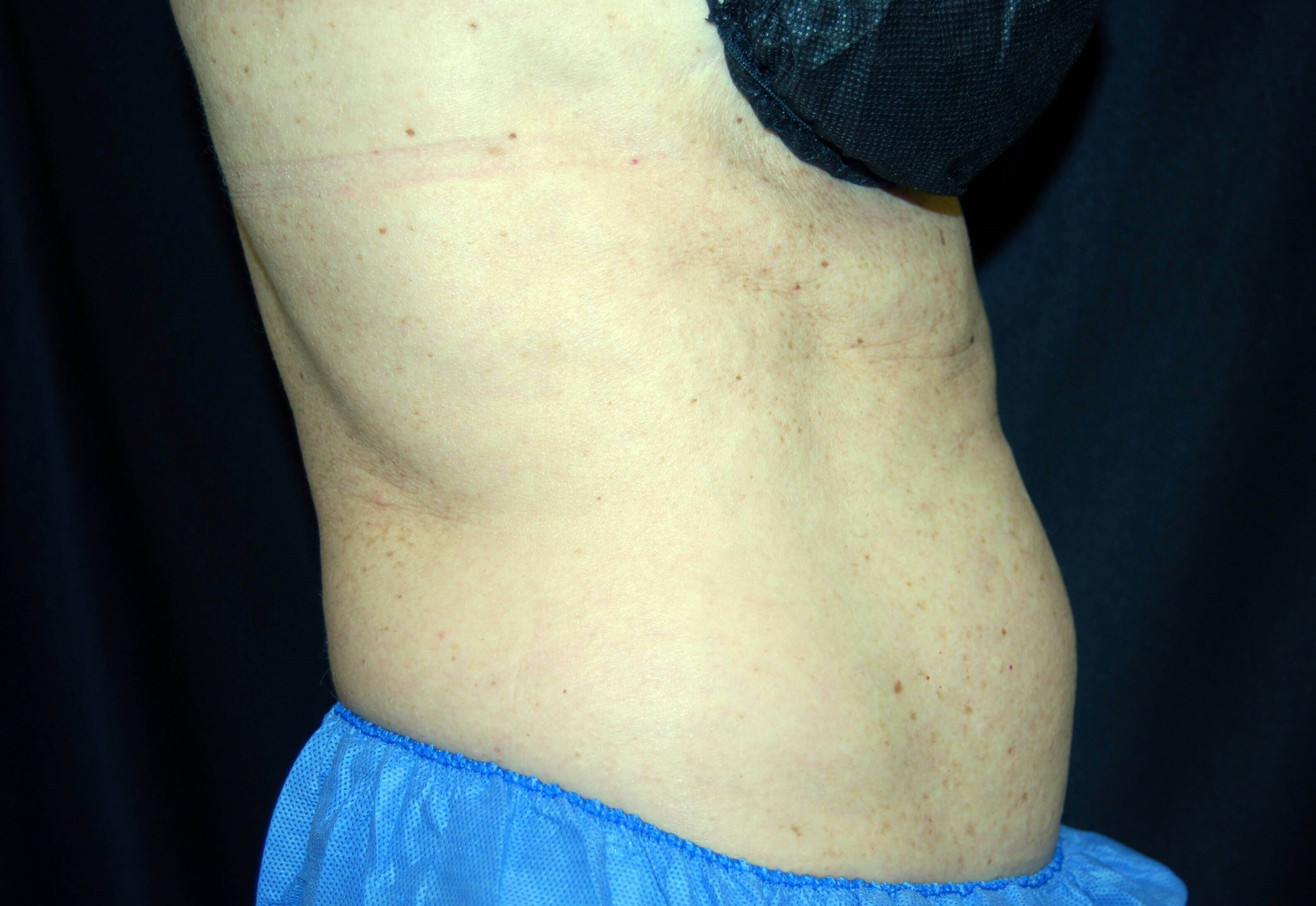 Right Side View Before CoolSculpting