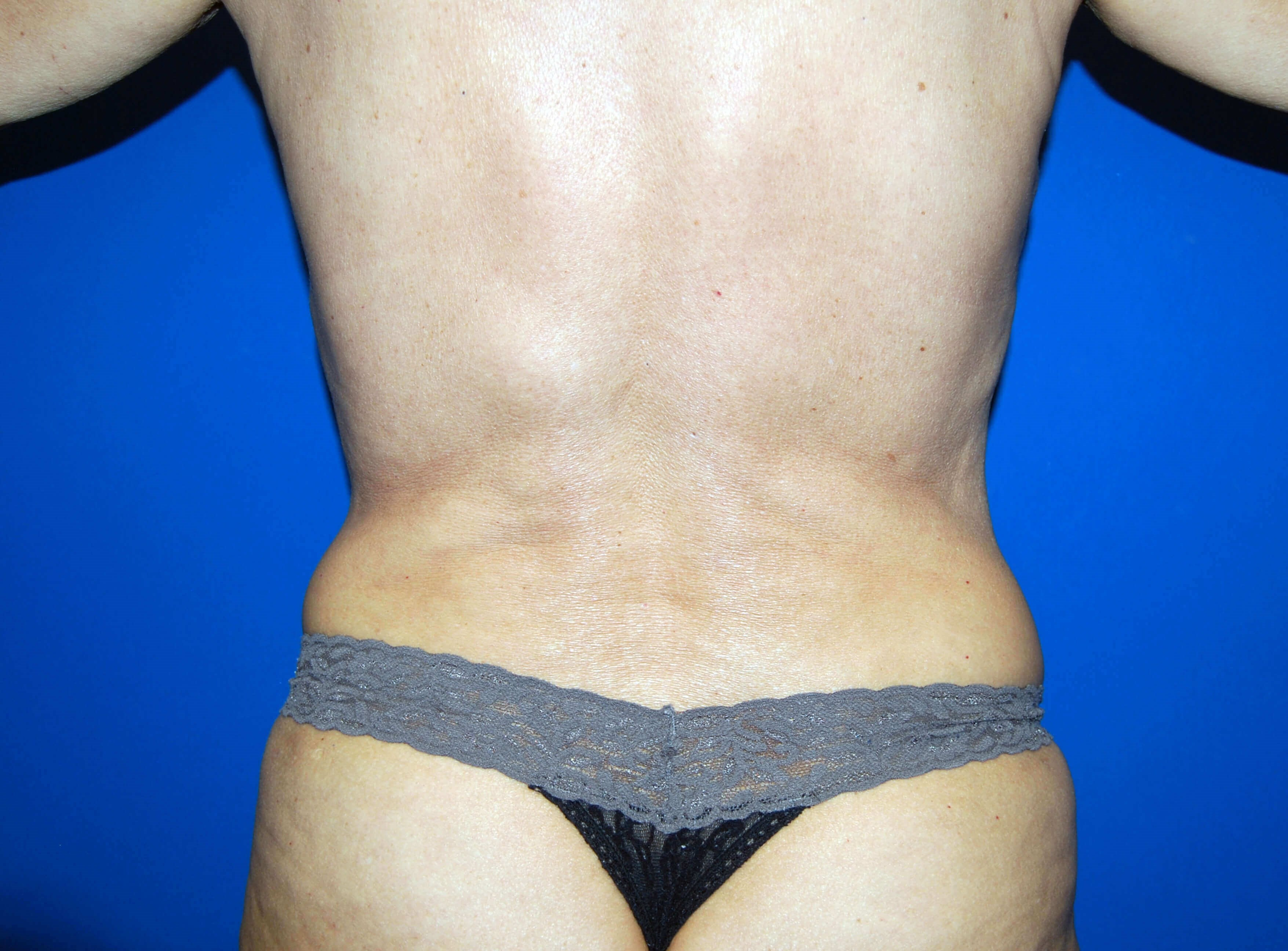 VASER Liposuction After Liposuction