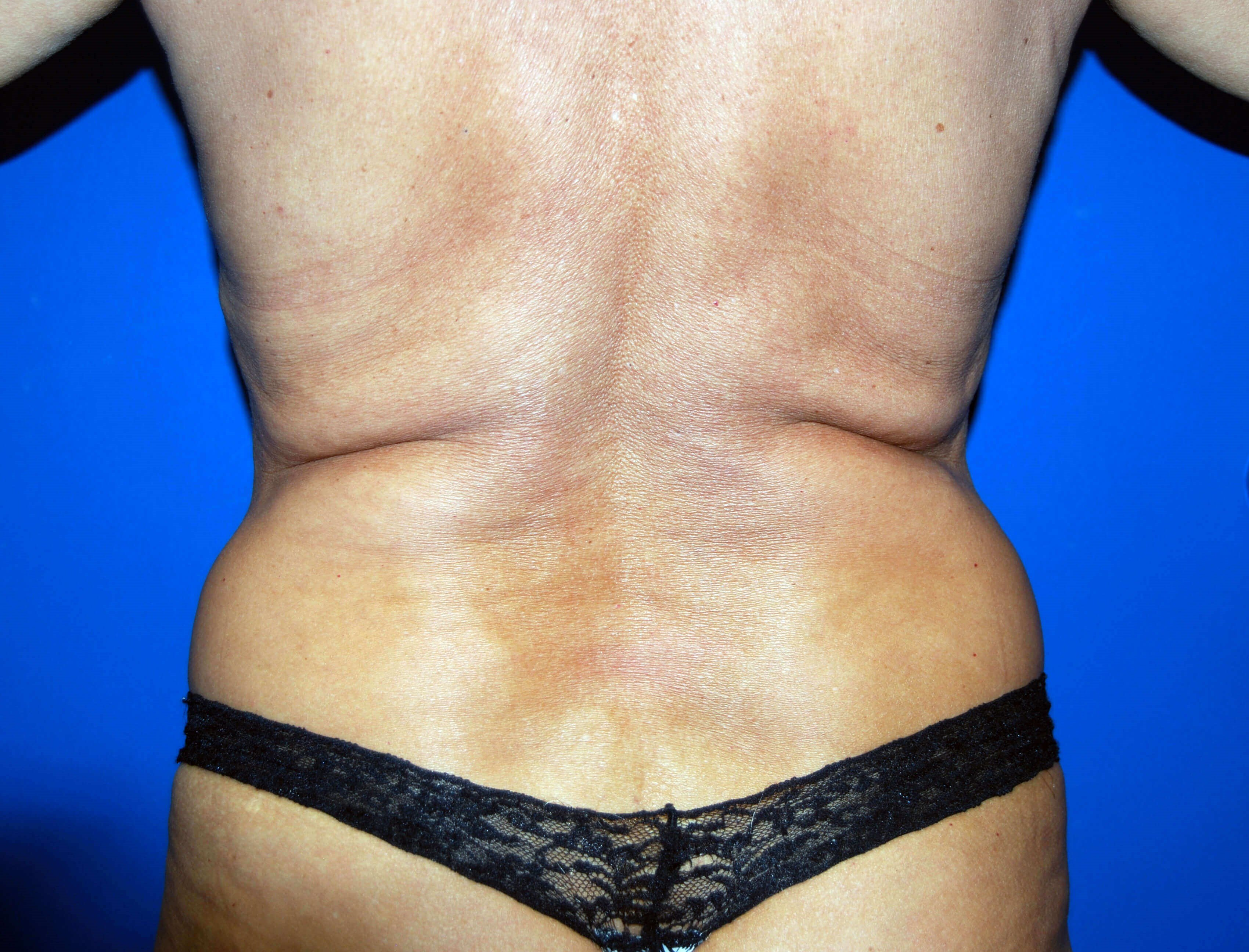 VASER Liposuction Before Liposuction