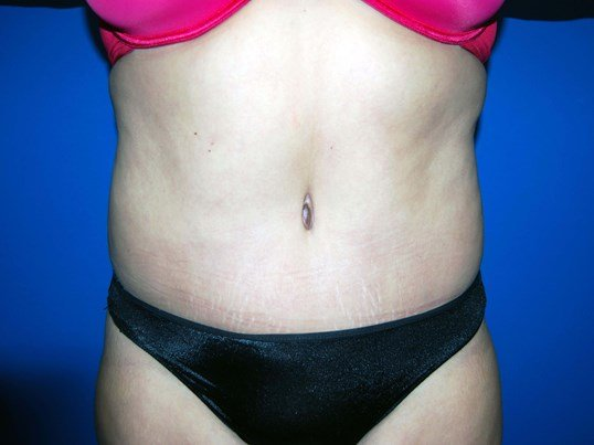 Front After Tummy Tuck