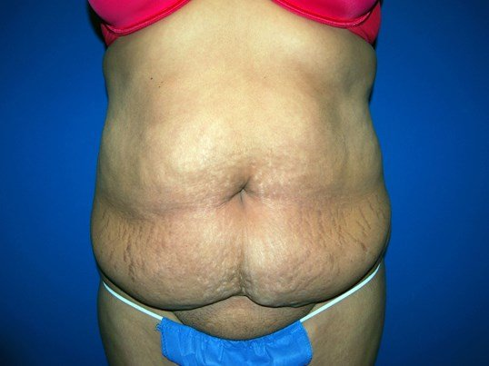 Front Before Tummy Tuck