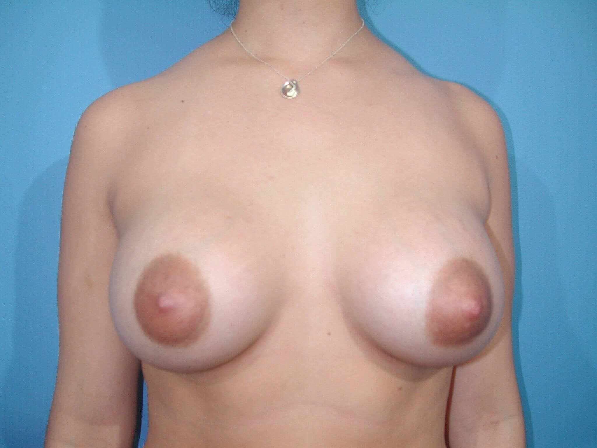 Front After Implants