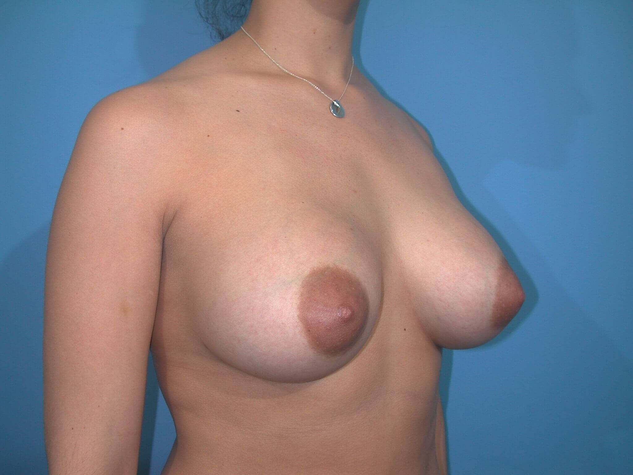 Right After Implants