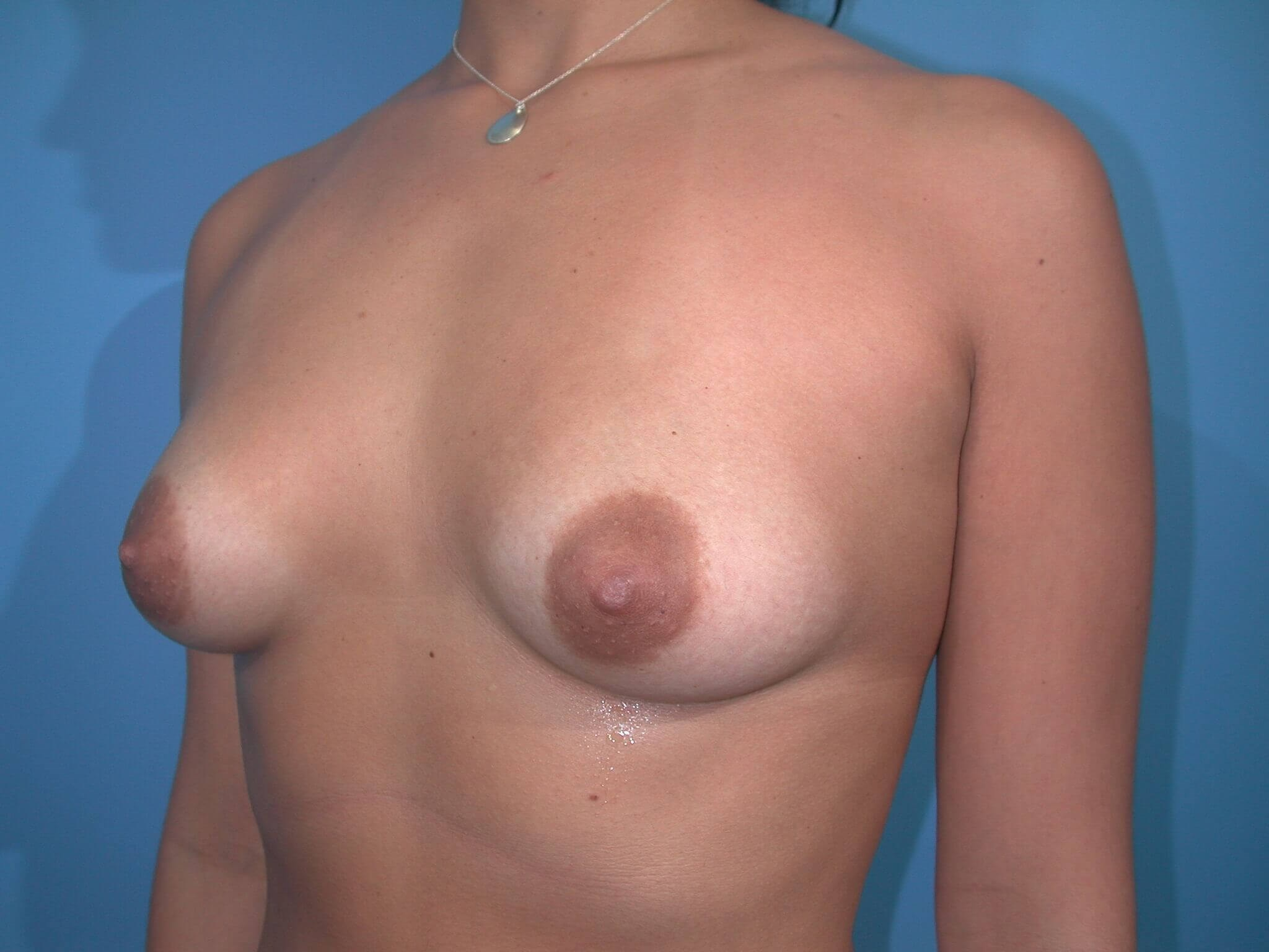 Left Before Implants