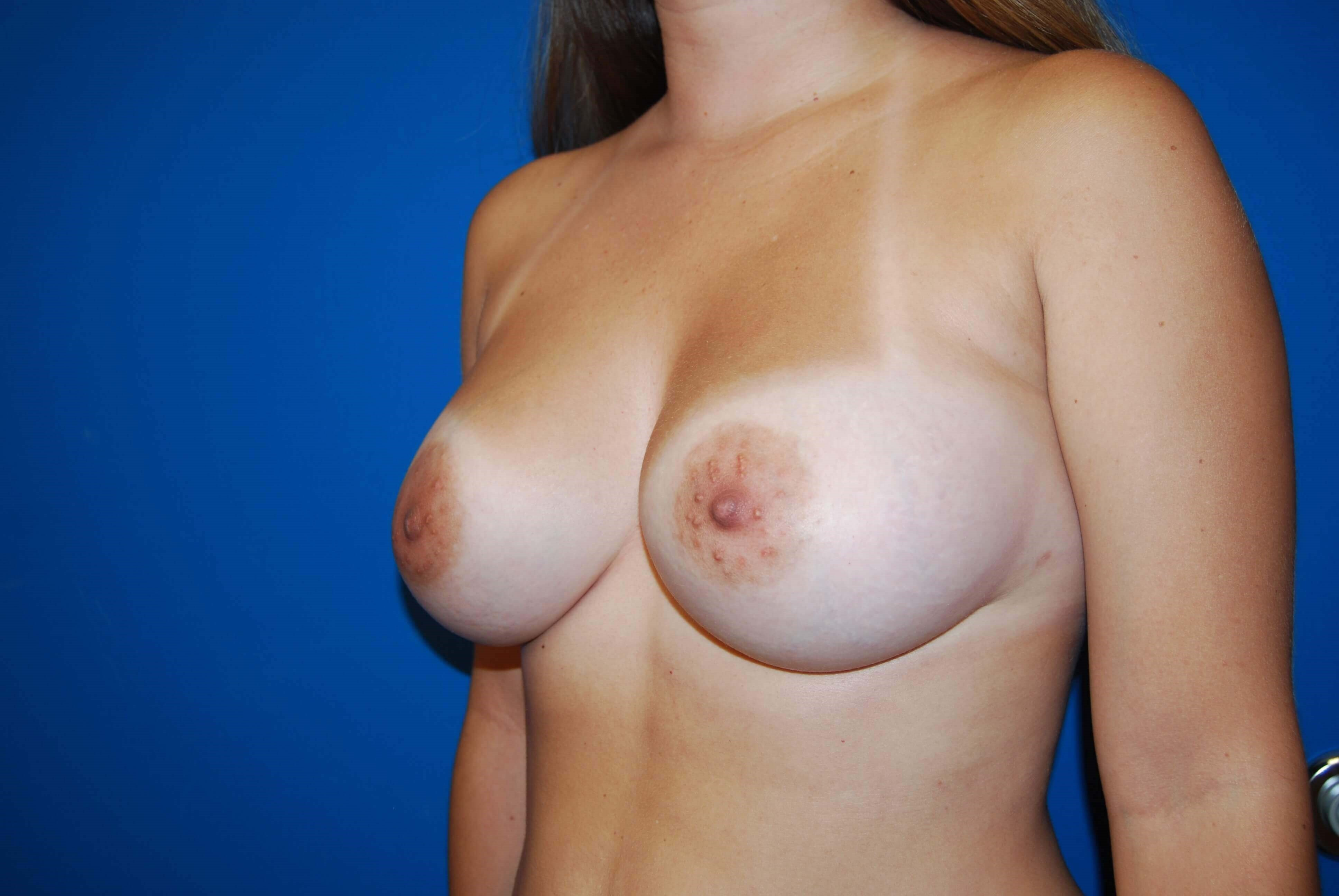 Left After Implants