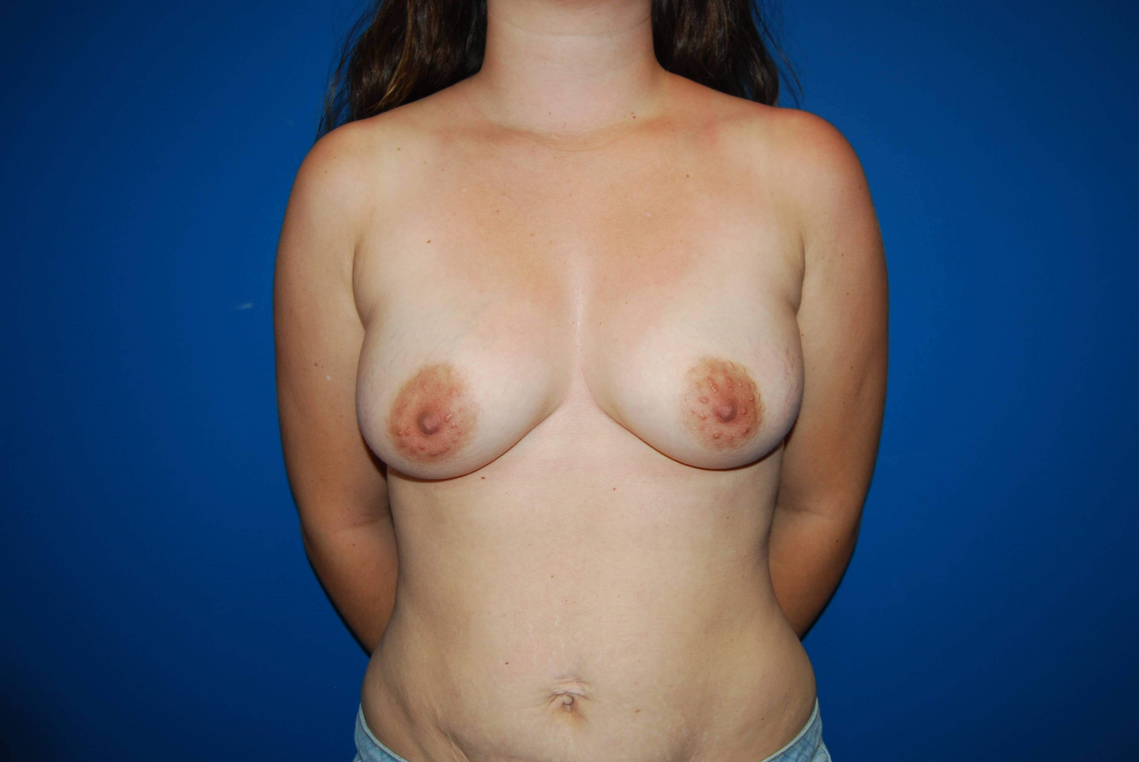 Front Before Implants