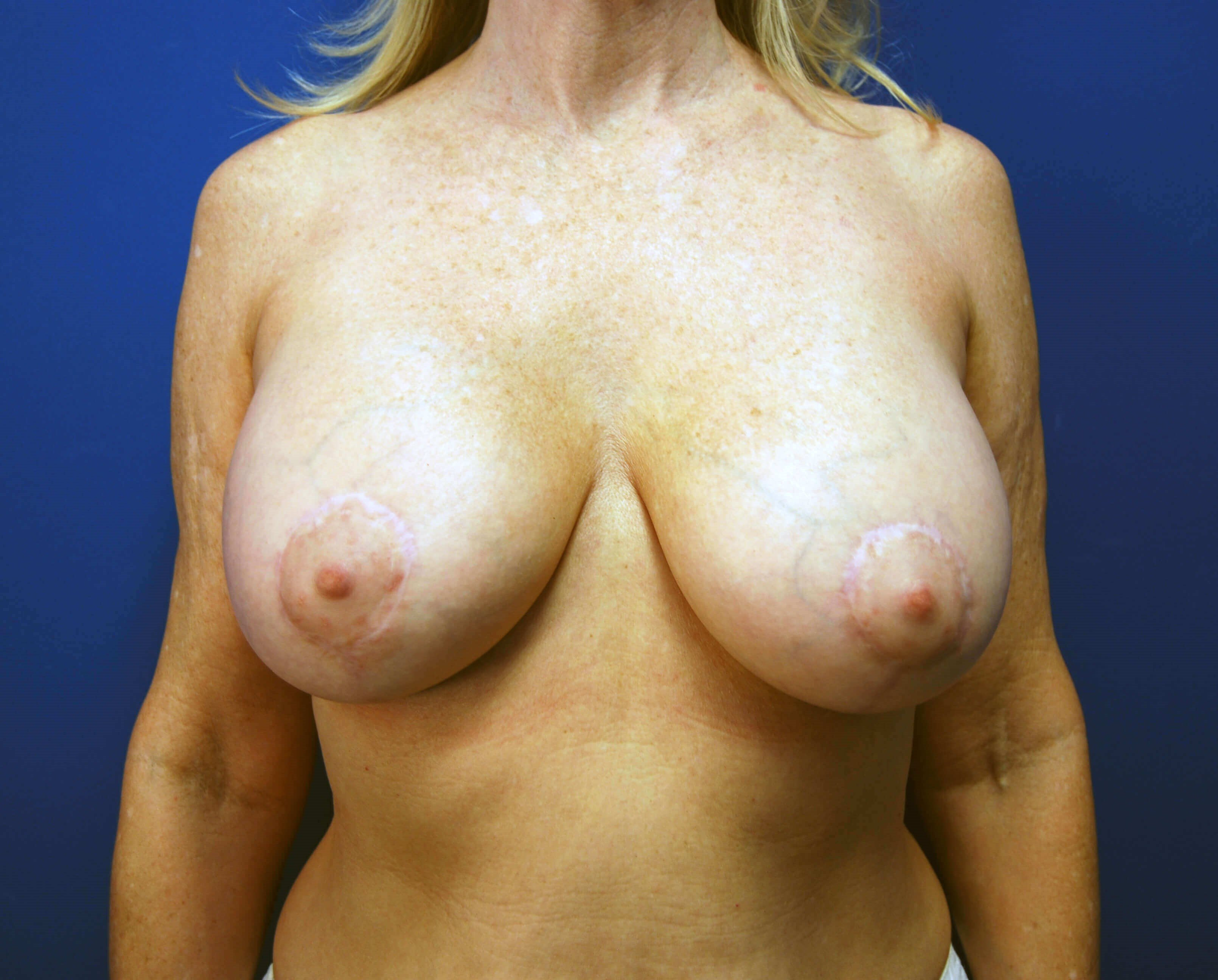 Front After Breast Augmentation