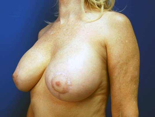 Left After Breast Implants