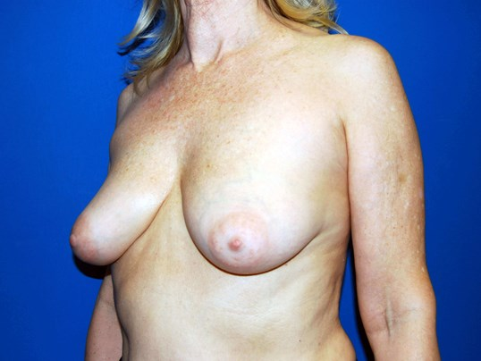 Left Before Breast Implants