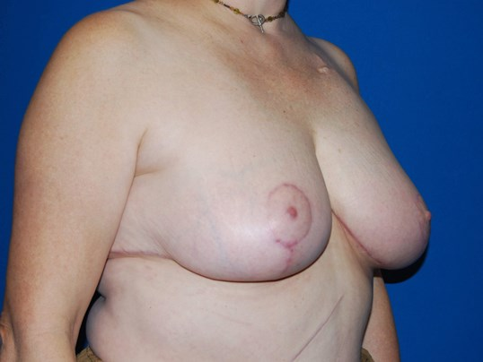 Right After Breast Reduction