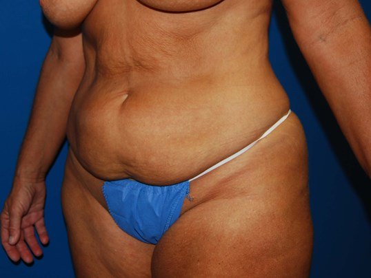 Left Before Tummy Tuck