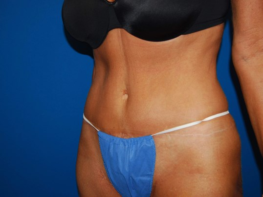 Left After Tummy Tuck