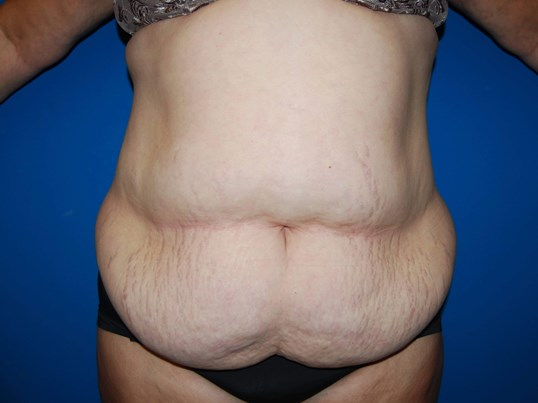 Front Before Abdominoplasty