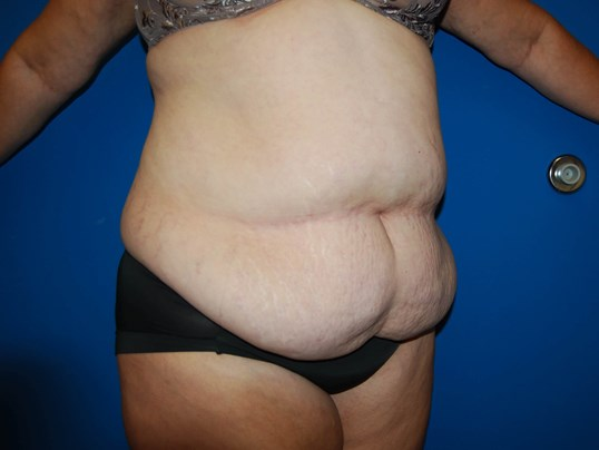 Right Before Abdominoplasty