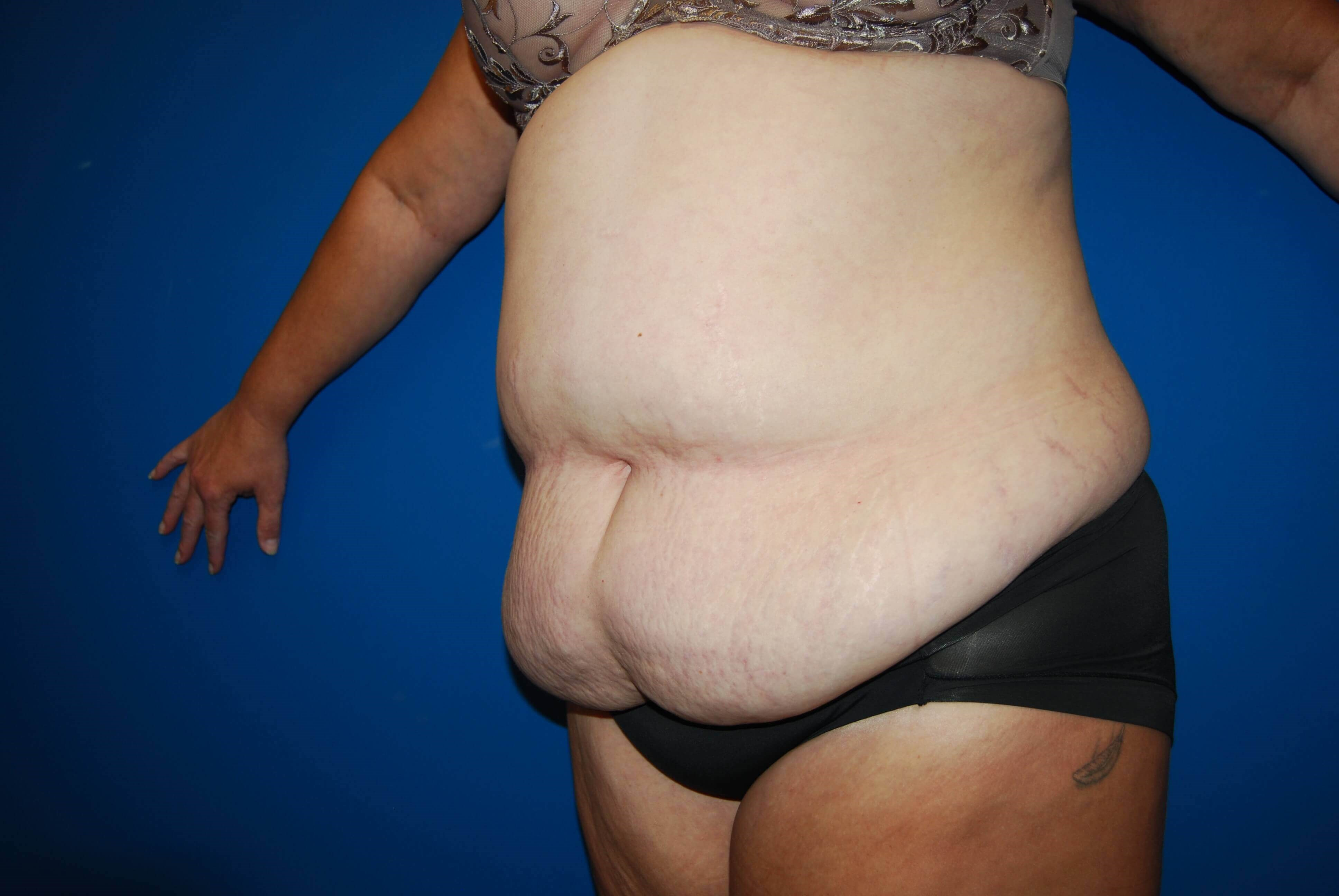 Left Before Abdominoplasty