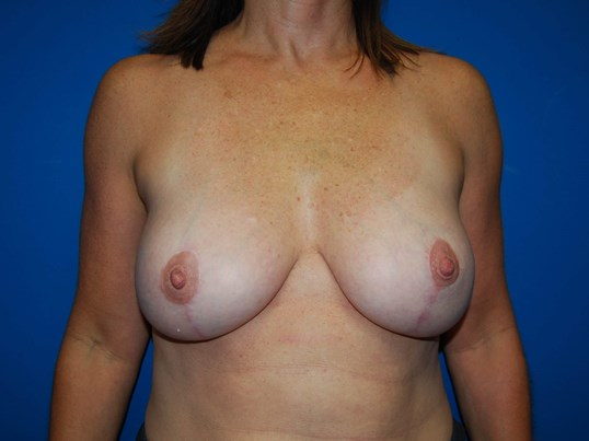 Front After Breast Reduction