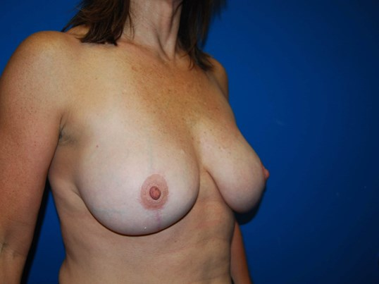 Left After Breast Reduction