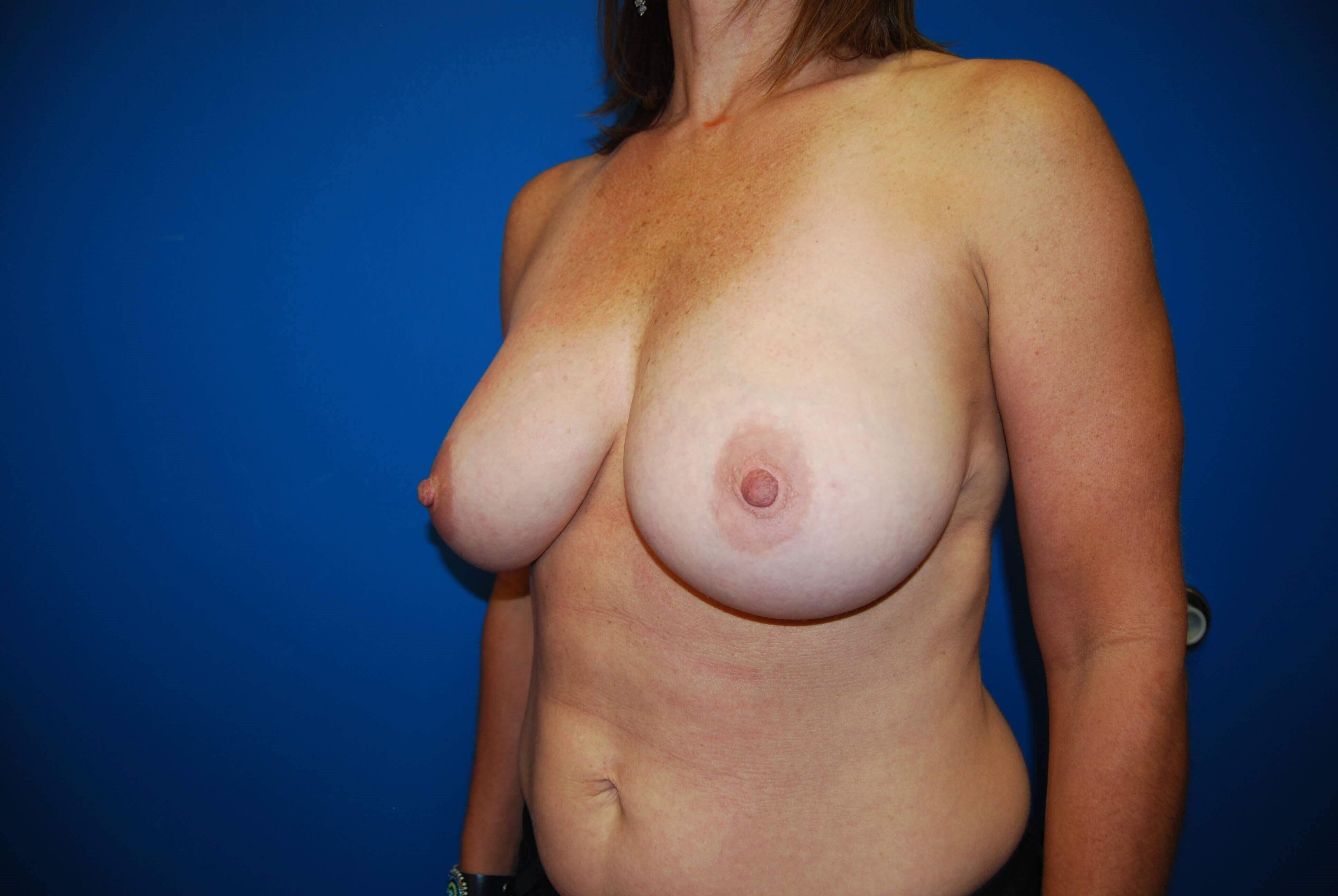 Left Before Breast Reduction