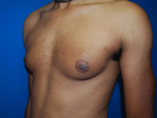 Oblique-Left Before