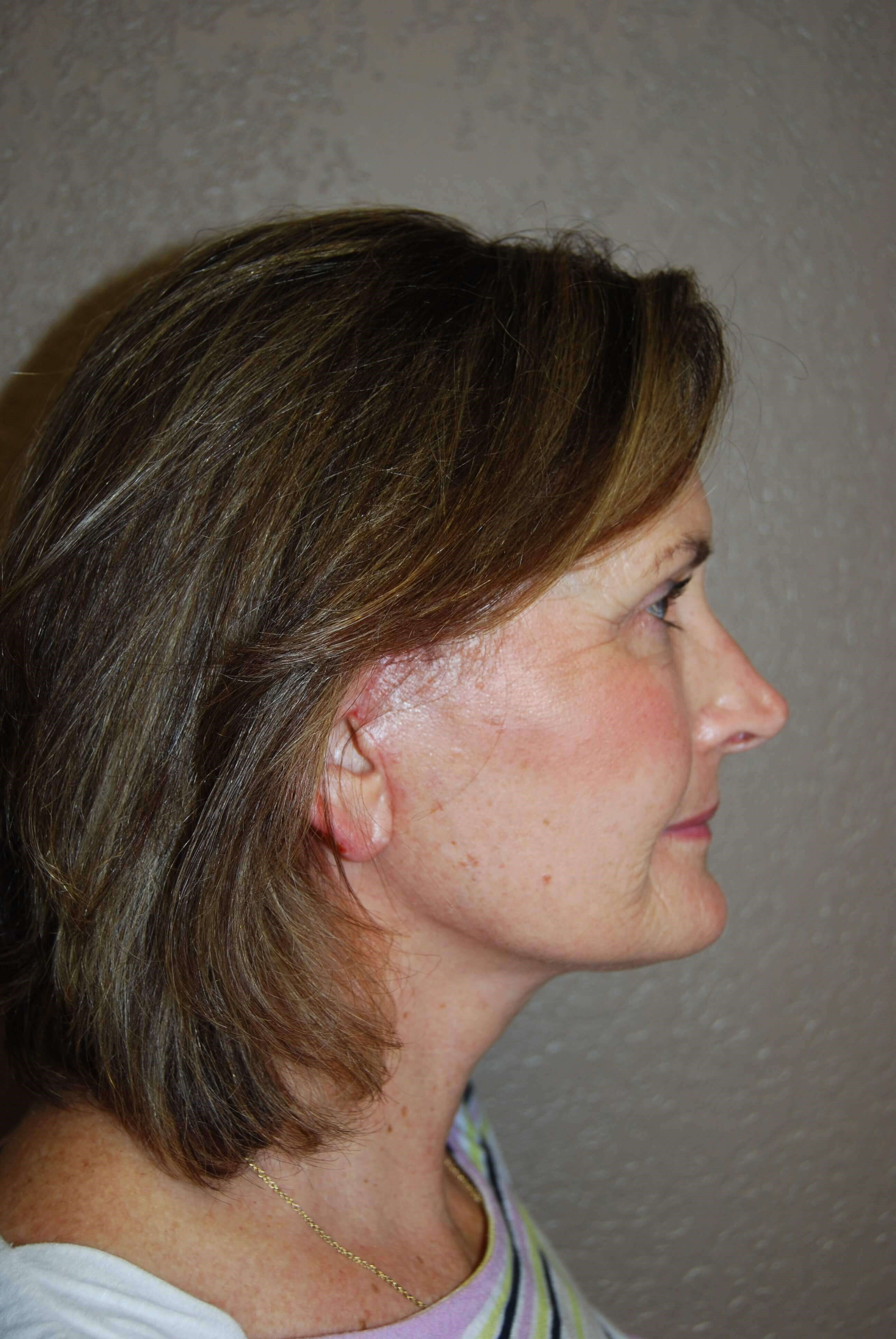 Lateral - Right After Mini Face Lift