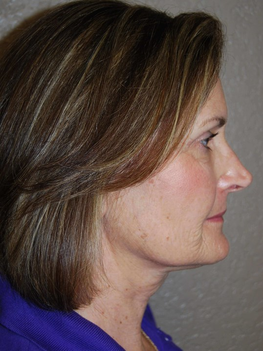 Lateral - Right Before Mini Face Lift