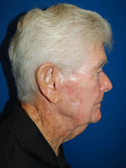 Lateral Before Neck Lift