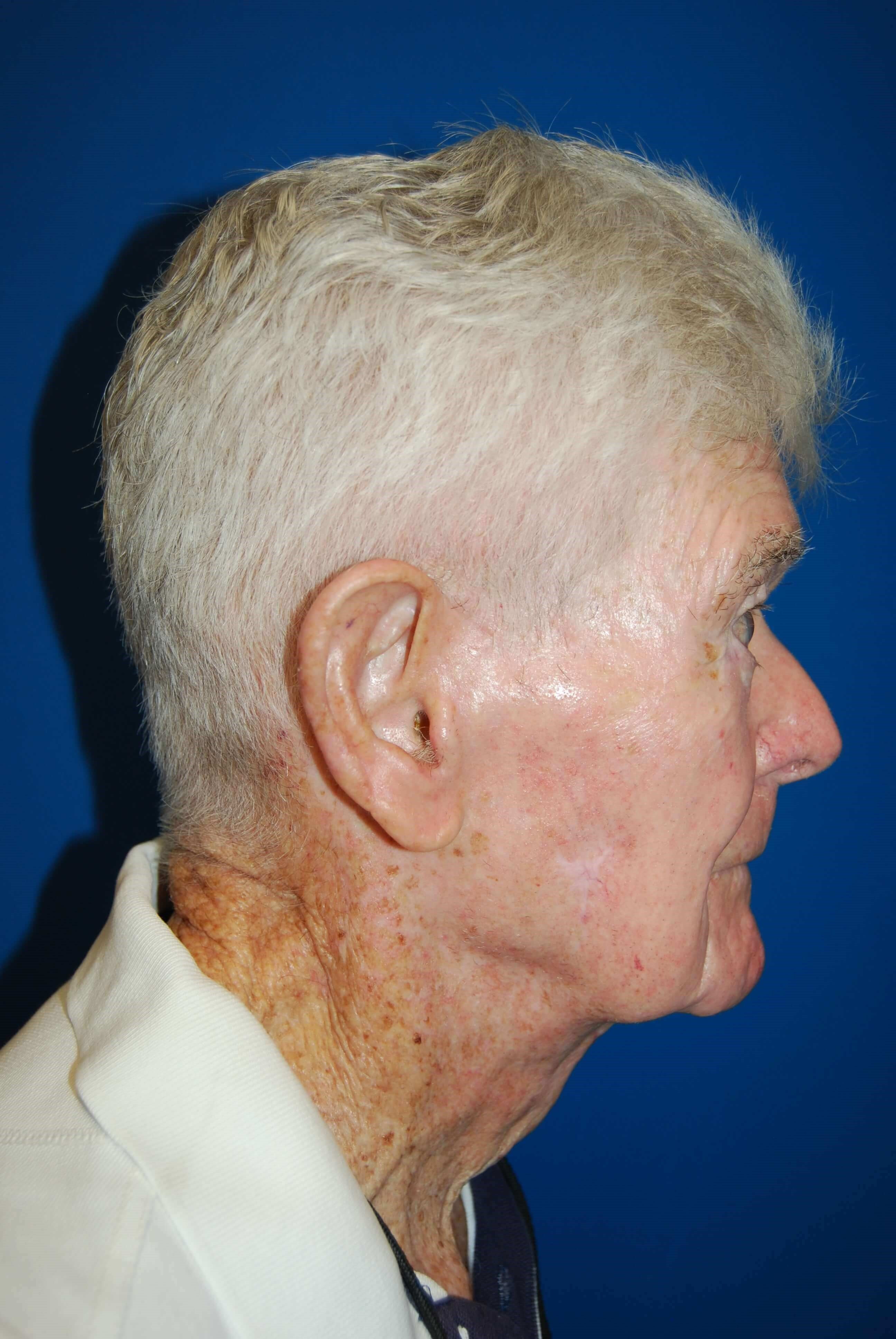 Lateral After Neck Lift