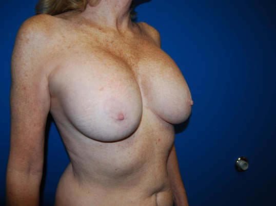 Right After Breast Implants