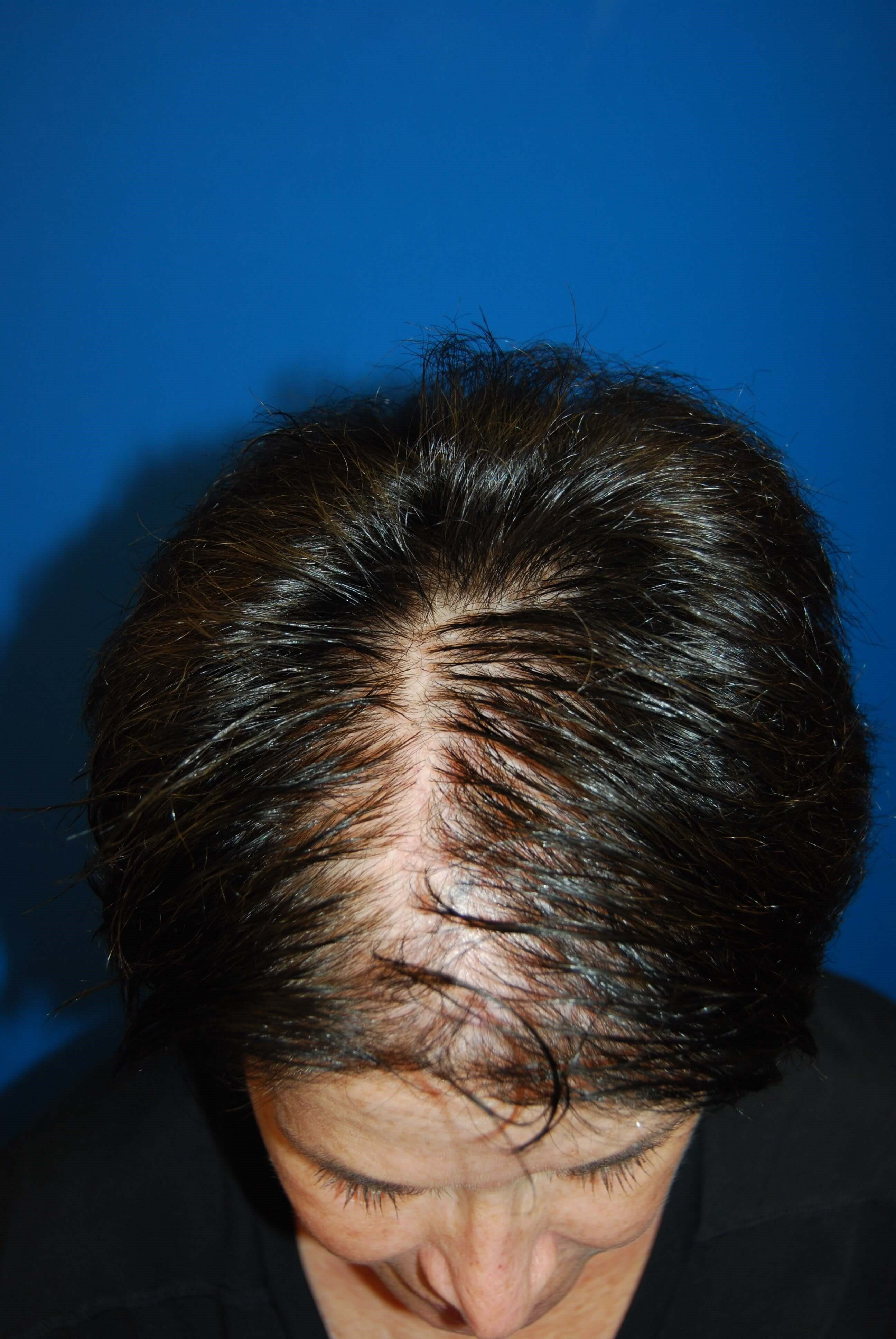 Front Before Hair Transplant