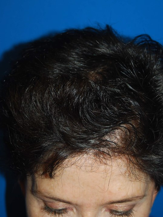 Front After Hair Transplant