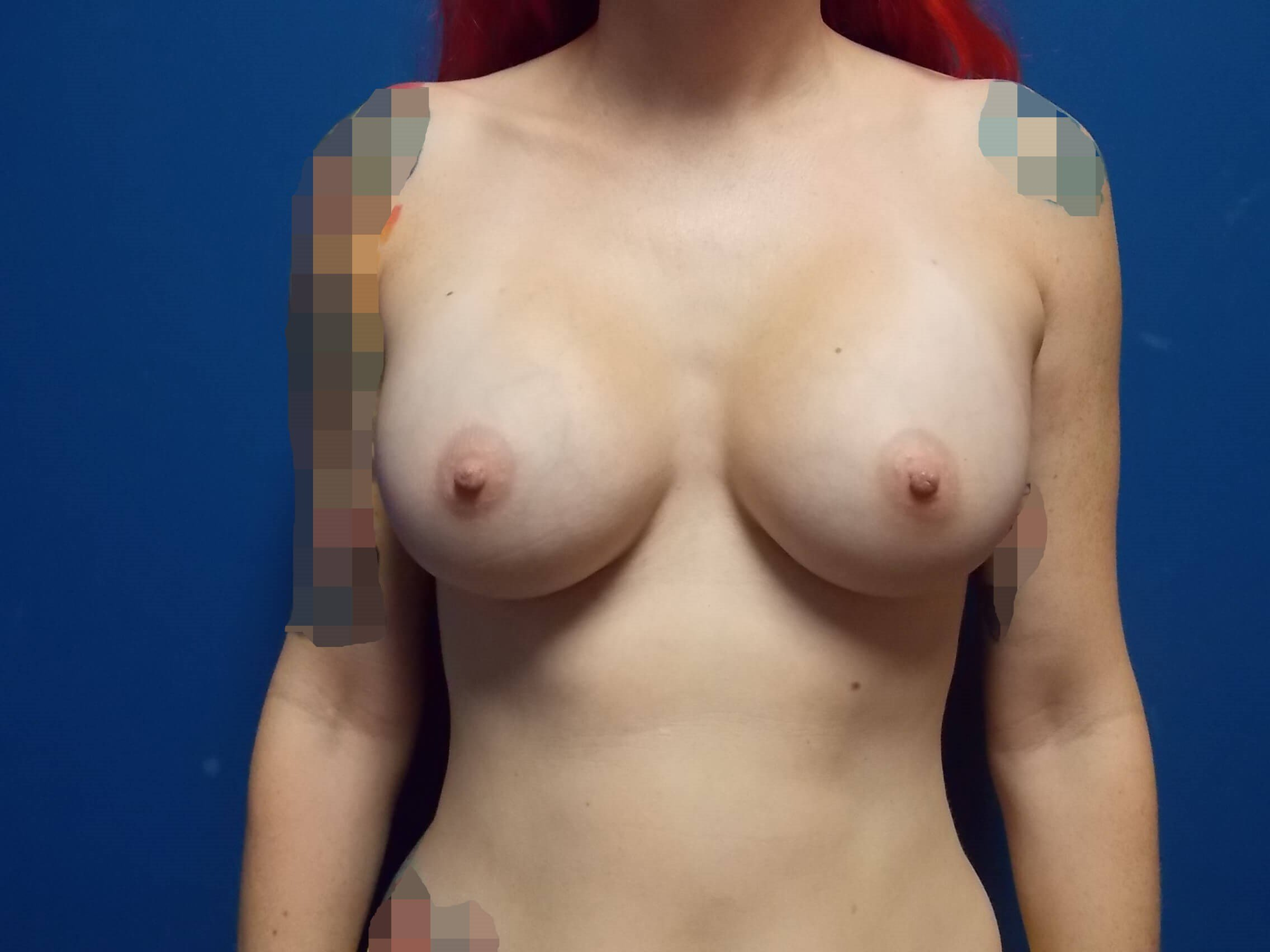 Front After Breast Implants