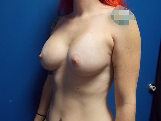 Left Side View After Breast Implants
