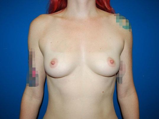 Front Before Breast Implants