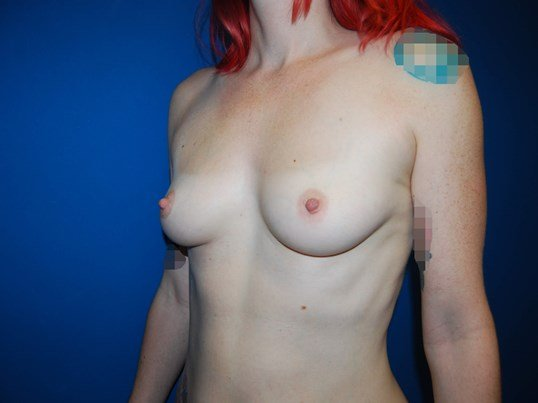 Left Side View Before Breast Implants
