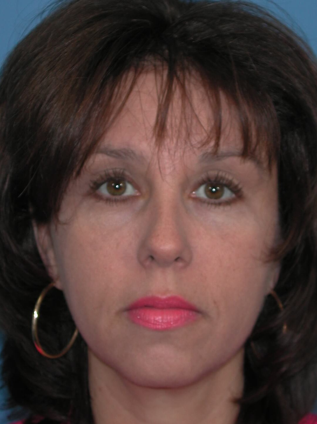 Front After Brow Lift