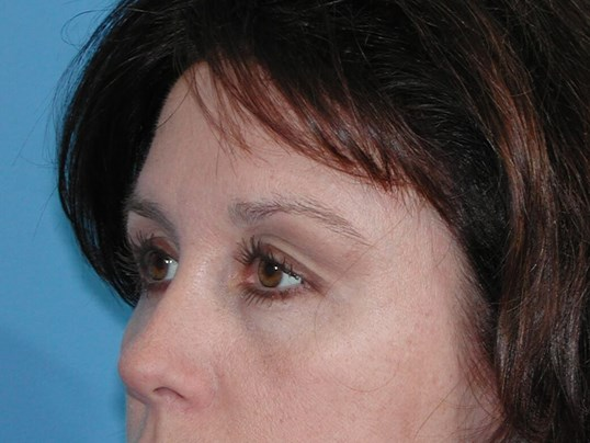 Left Side View After Brow Lift