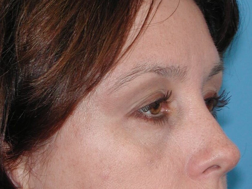 Right Side View After Brow Lift