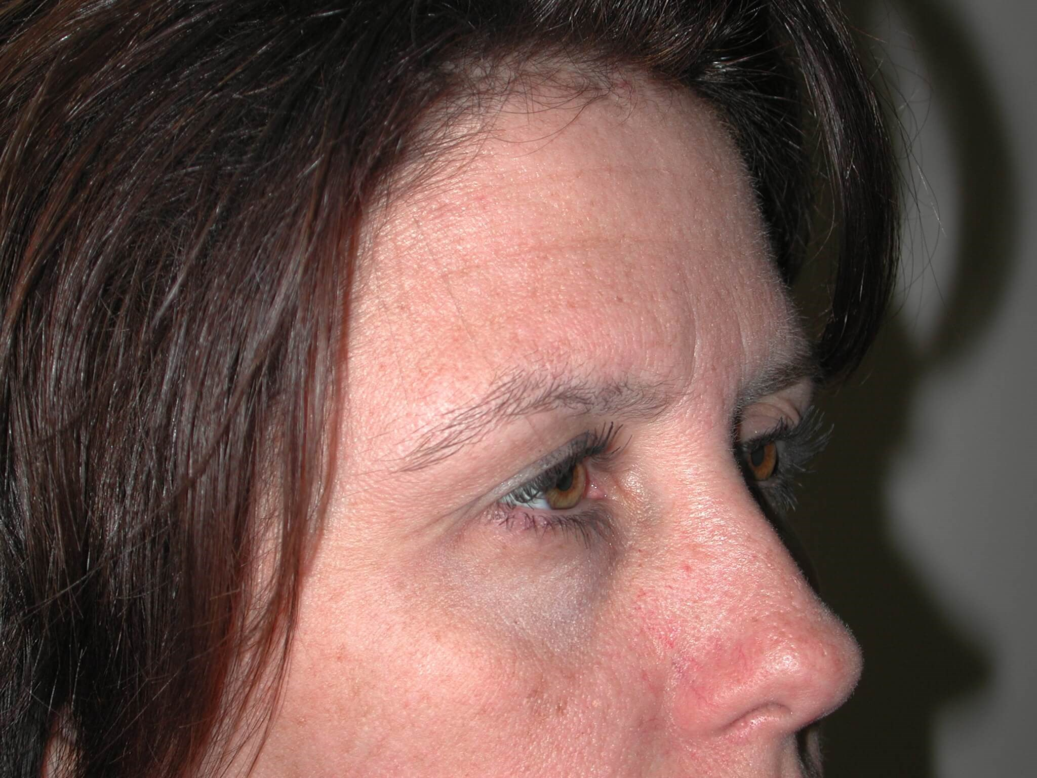 Right Side View Before Brow Lift