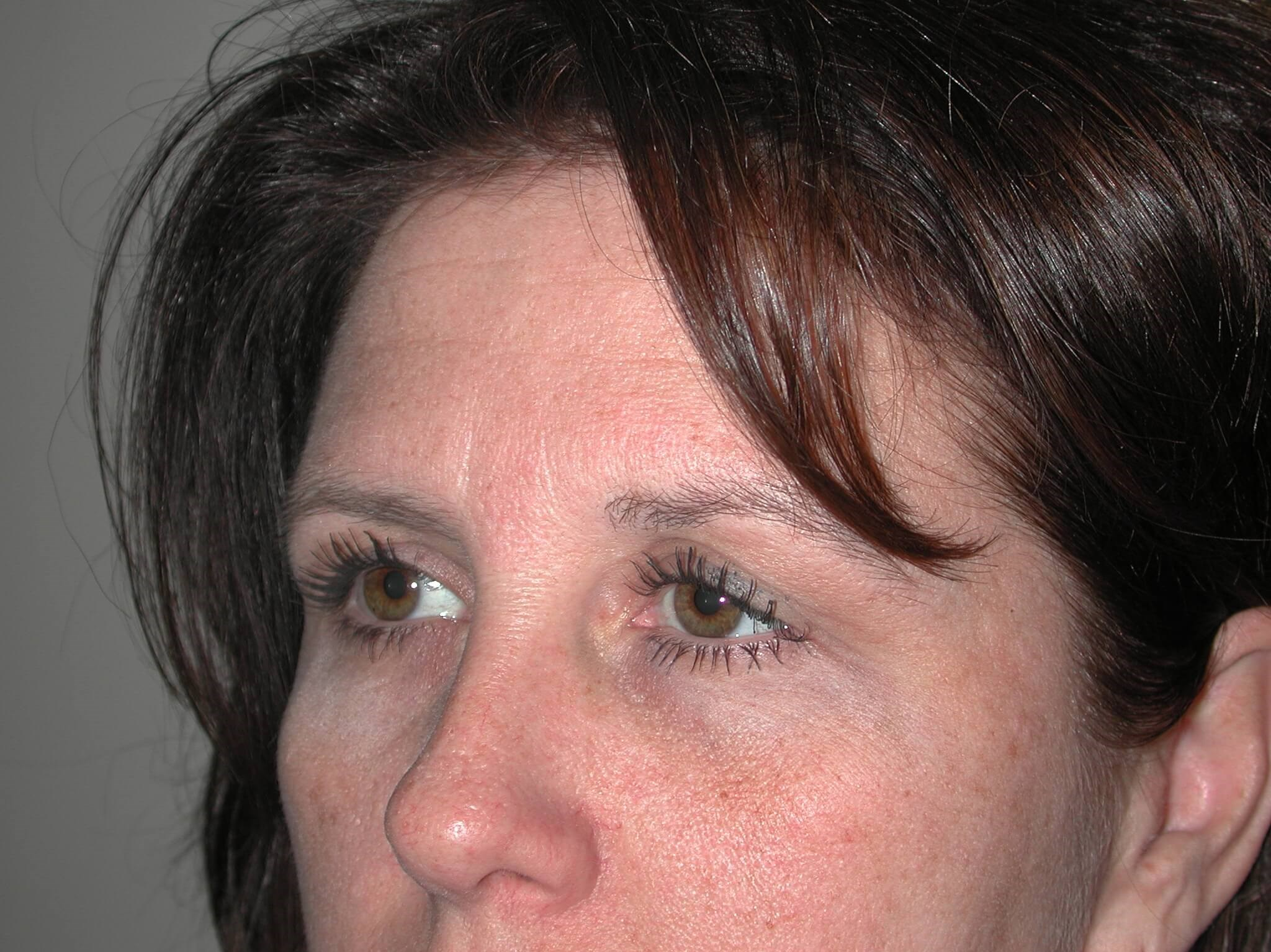 Left Side View Before Brow Lift