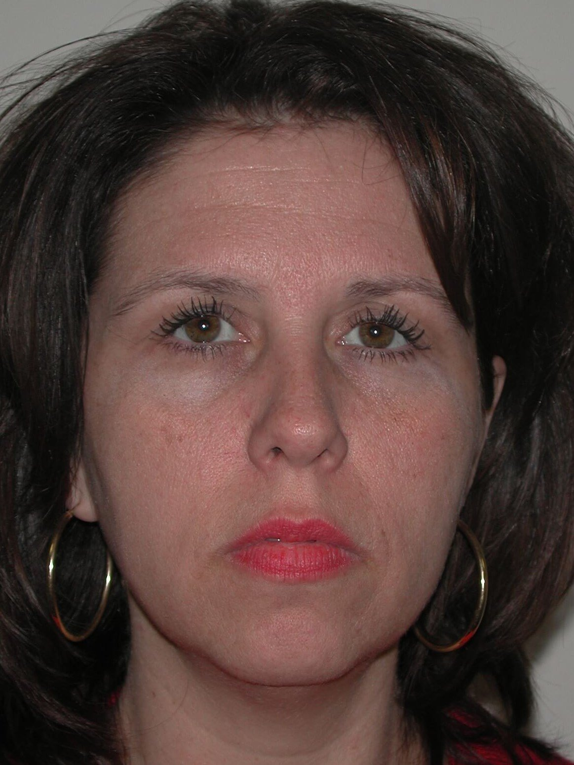 Front Before Brow Lift